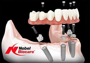 Nahezu oder ganz zahnlose Kiefer lassen sich mittels der All-on-4-Methode in nur 24 Stunden mit festem Zahnersatz versorgen.